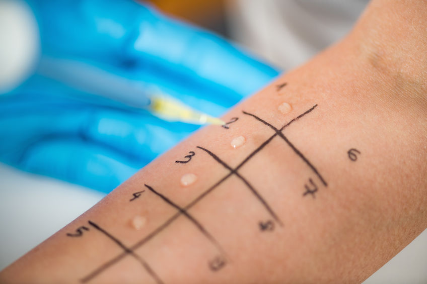 When Should I Consider Getting an Allergy Test?